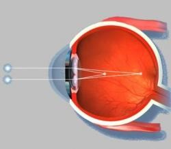 Аметропия глаза схема 2