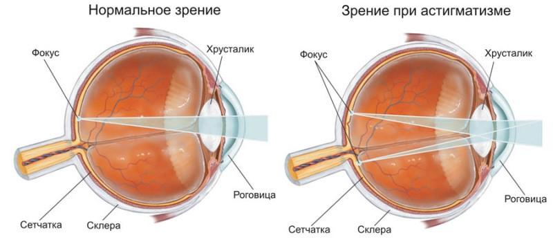 Схематично - патология и норма при астигматизме