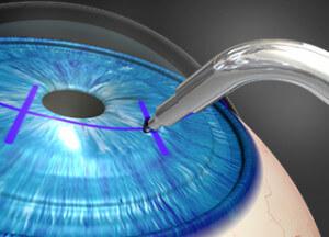 Микрохирургия и кератопластика глаза