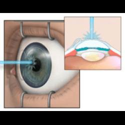 Принцип лазерной коррекции глаз