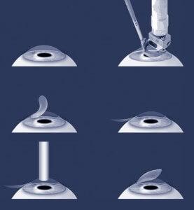 Виды лазерной коррекции