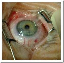 Глаз пациента при операции