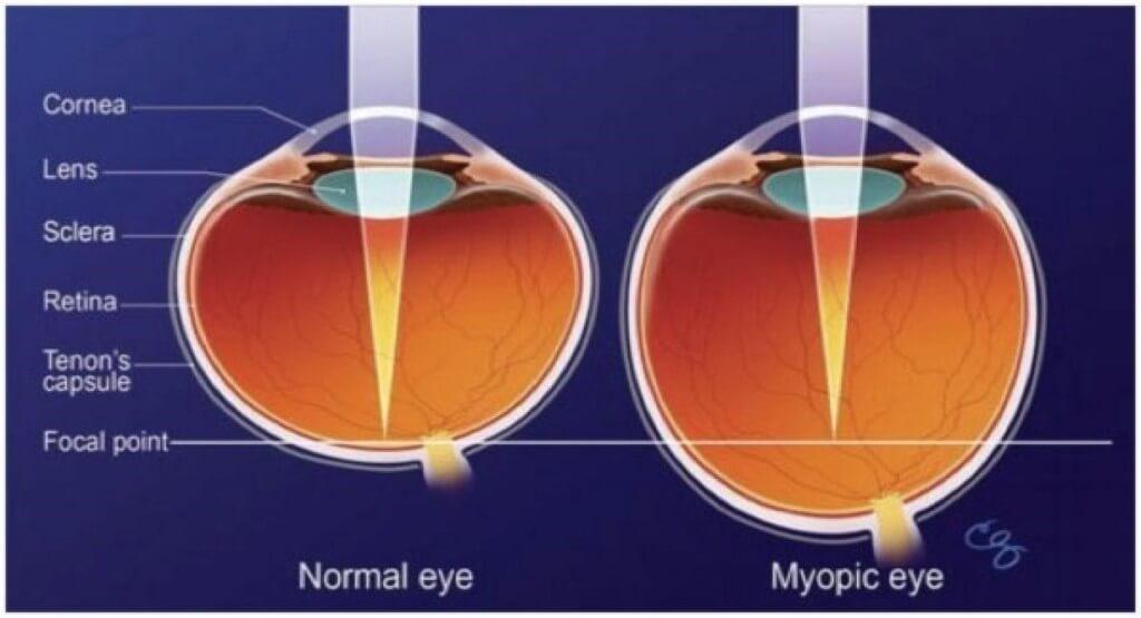 Глаз при миопии и норма