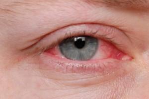 Как выглядит аллергический блефарит у человека