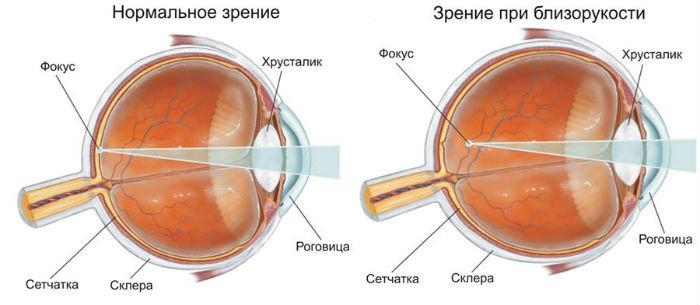 Миопия и нормальное зрение