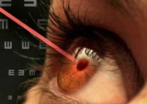 Отзывы пацинтов о лазерной коррекции