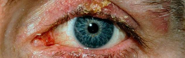Причины возникновения блефарита