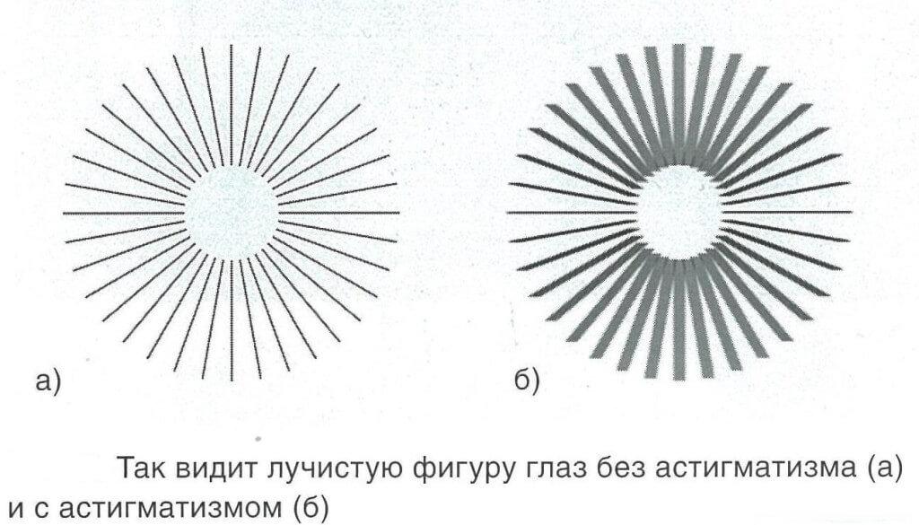 Тест на определение гиперметропического астигматизма