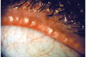 Фото глаза с демодекозным блефаритом
