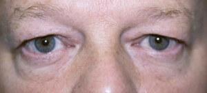 Фото заболевания блефарохалазис