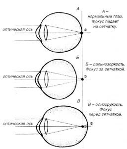Что такое дальнозоркость и близорукость - схема