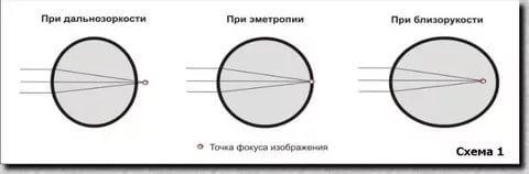 3 основных вида астигматизма