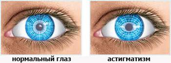 Как выглядит здоровый глаз и с потологией