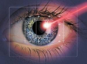 Лазерная коррекция астигматизма