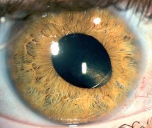 Как выглядит афакия глаза