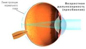 Пресбиопия - заболевание глаз