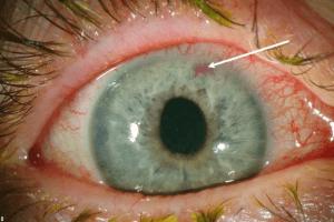 Глаукома глаза - что это
