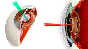 Лазерные методы лечения