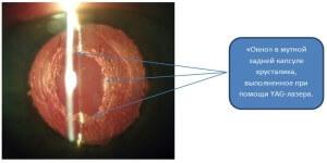 Симптомы вторичной катаракты