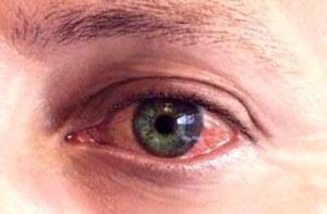 Коньюктивит глаз