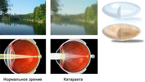 Как человек видит с катарактой и что происходит с хрусталиком