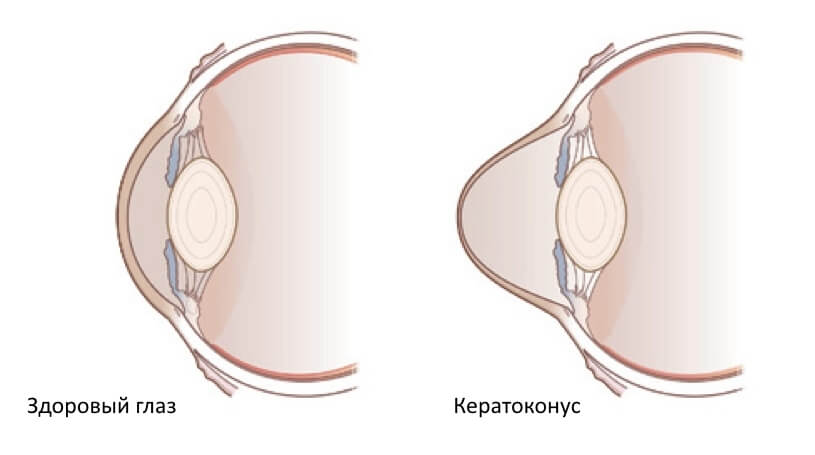 Здоровый глаз и кератоконус