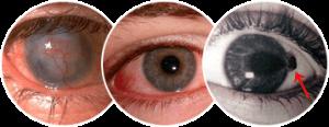 Виды кератопатии