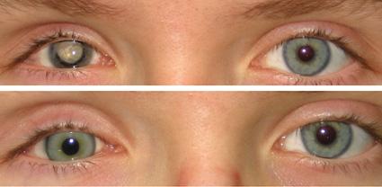 Кератопатия глаза и норма