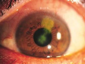 Как выглдяит глаз при грибковым кератите