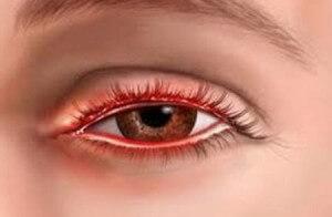 Воспаленный глаз при конъюктивите