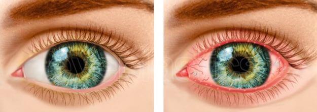 Здоровый глаз и демодекоз