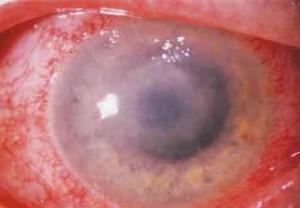 Акантамебный кератит у больного