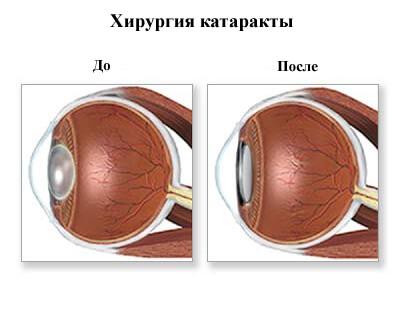 Хирургия катаракты до и после