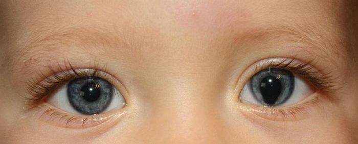 Колобома глаза у детей