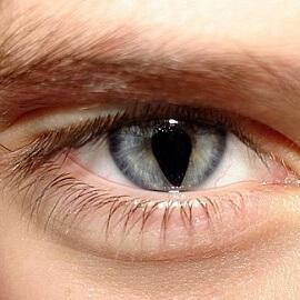 Колобома глаза у взрослого