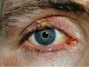 Запущенный демодекоз глаза