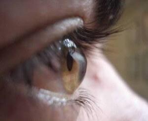 Как выглядит глаз при кератоконусе