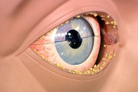 Гнойный конъюнктивит глаза в разрезе