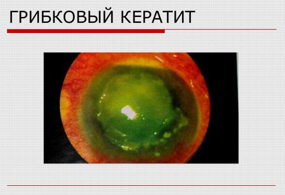 Как выглядит роговица при грибковом кератите