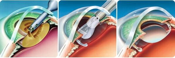 Операция на катаракту
