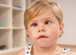Косоглазие у ребенка - фото