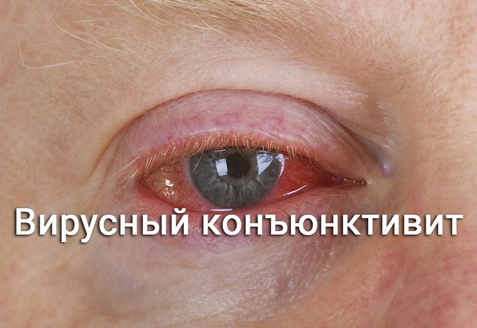 Что такое вирусный коньюнктивит
