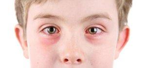Заразен ли коньюнктивит у детей