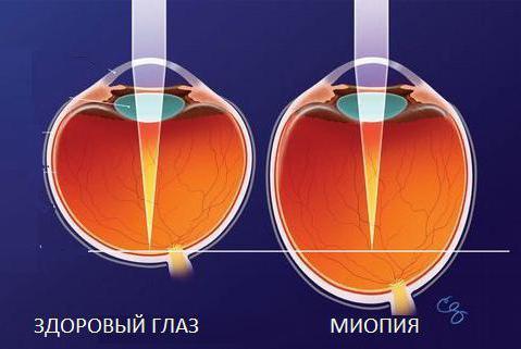 Здоровый глаз и миопия высокой степени