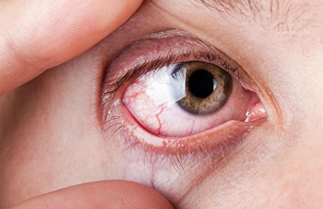 Красные глаза один из симптомов