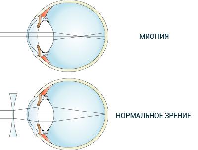 Что такое миопия и нормальное зрение