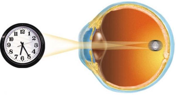 Ухудшение зрения в зависимости от времени