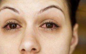 Покраснение глаз - симптом конъюнктивита