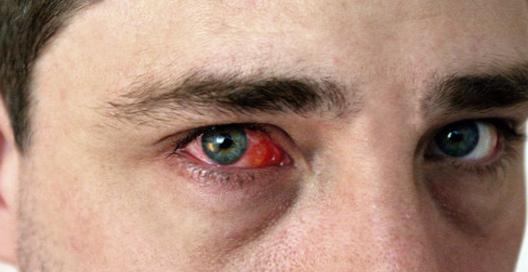 Конъюнктивит глаз у взрослого