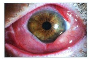 Острый конъюнктивит глаза